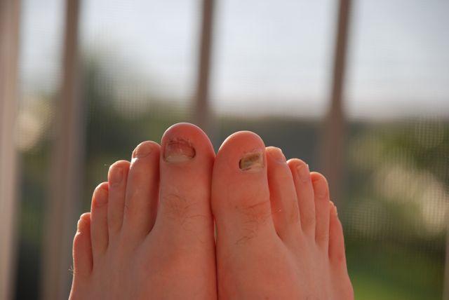 dave'sfoot